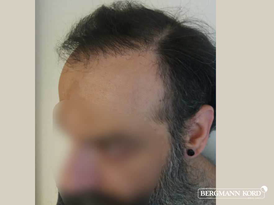 haartransplantation-bergmann-kord-ergebnisse-männer-57005PG-nach-links-001