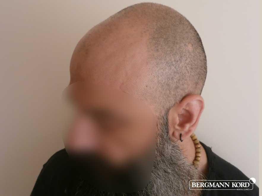 haartransplantation-bergmann-kord-ergebnisse-männer-57005PG-vor-links-001