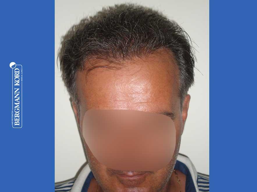 haartransplantation-bergmann-kord-ergebnisse-männer-57030PG-nach-front-001