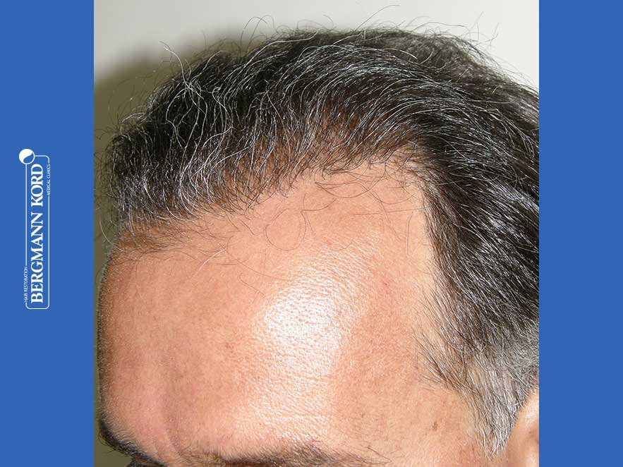 haartransplantation-bergmann-kord-ergebnisse-männer-57030PG-nach-links-001