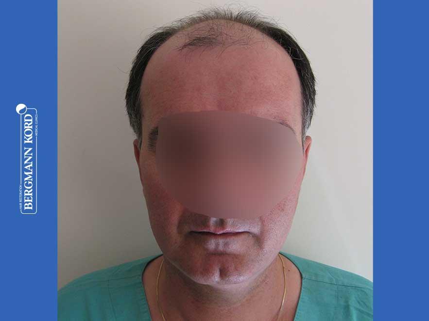 haartransplantation-bergmann-kord-ergebnisse-männer-57030PG-vor-front-001