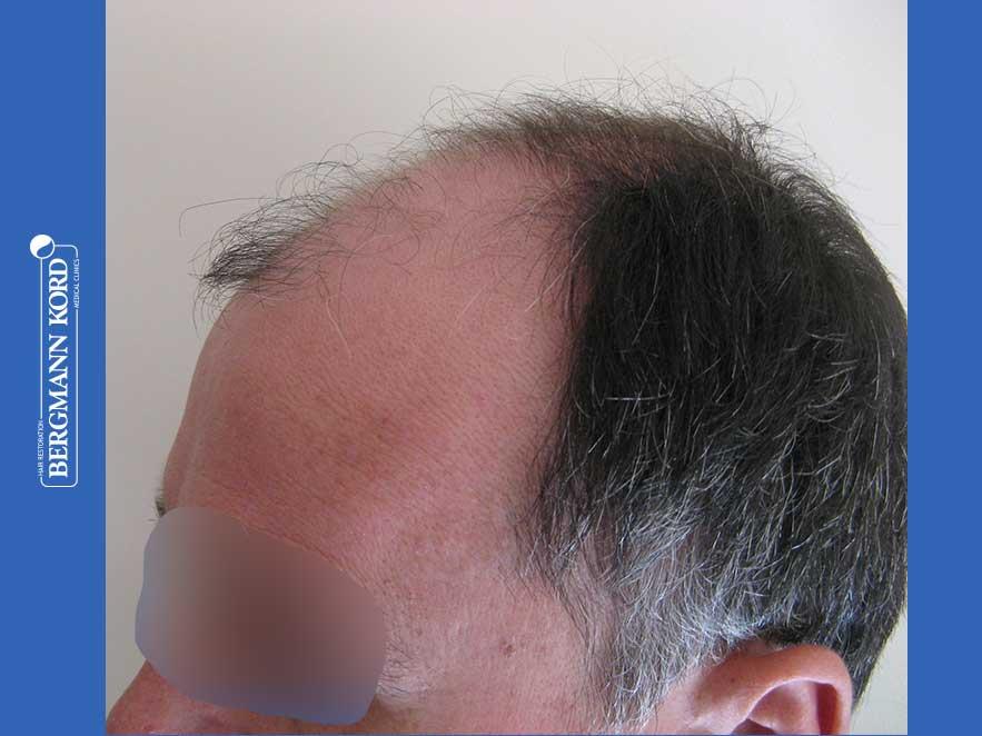 haartransplantation-bergmann-kord-ergebnisse-männer-57030PG-vor-links-001