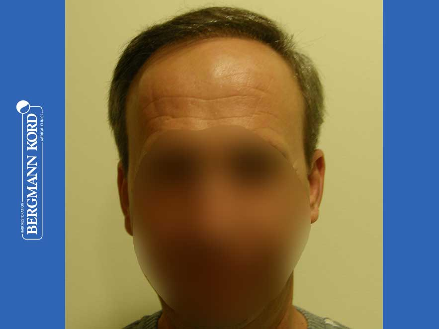 haartransplantation-bergmann-kord-ergebnisse-männer-57045PG-nach-front-001
