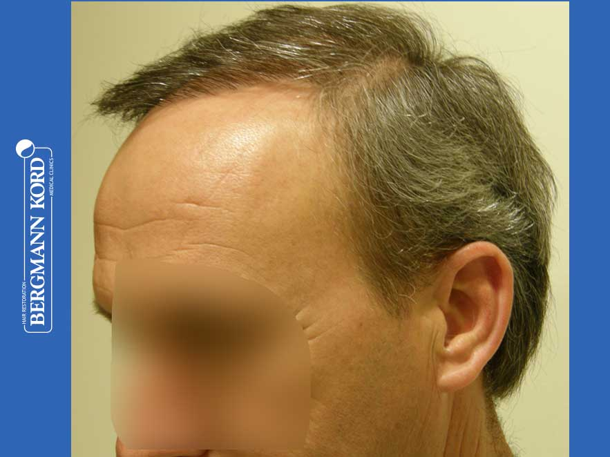 haartransplantation-bergmann-kord-ergebnisse-männer-57045PG-nach-links-001