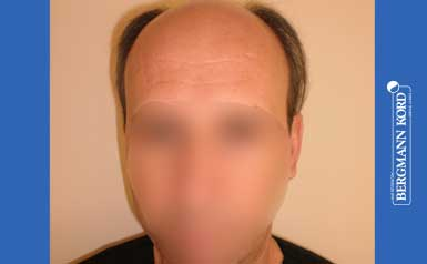 haartransplantation-bergmann-kord-ergebnisse-männer-57045PG-thumb-001
