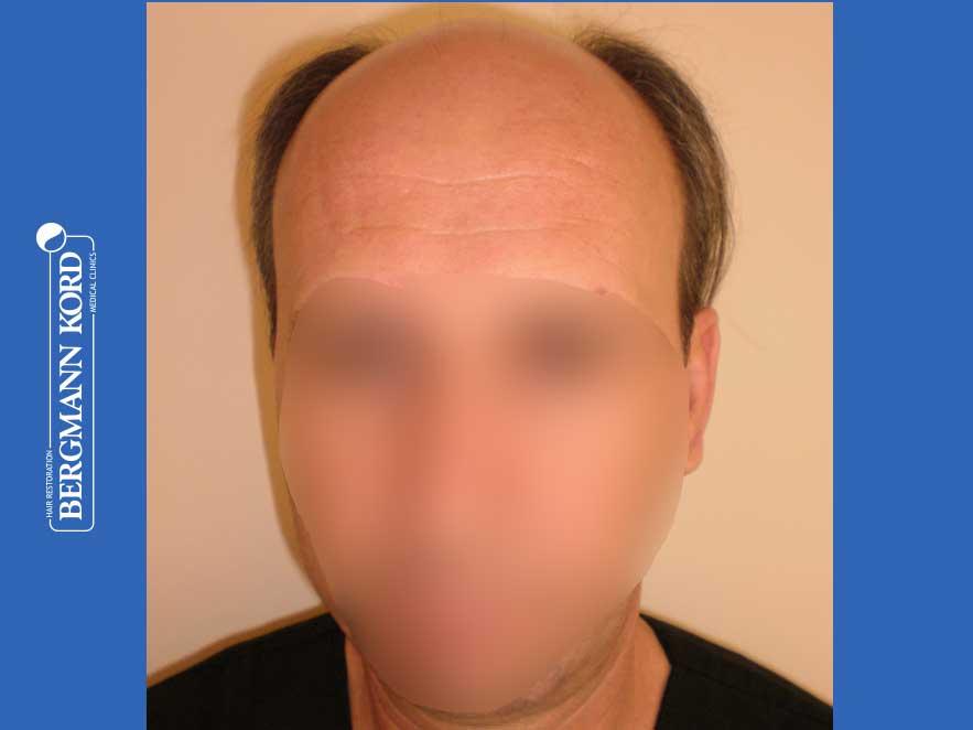 haartransplantation-bergmann-kord-ergebnisse-männer-57045PG-vor-front-001