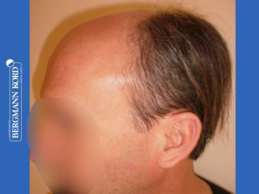 haartransplantation-bergmann-kord-ergebnisse-männer-57045PG-vor-links-001