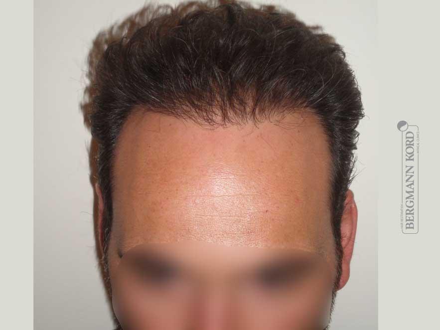 haartransplantation-bergmann-kord-ergebnisse-männer-58025PG-nach-front-001