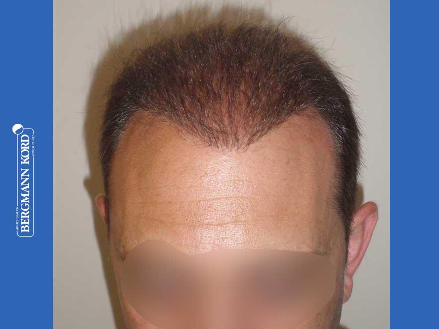 haartransplantation-bergmann-kord-ergebnisse-männer-58054PG-10monate-001