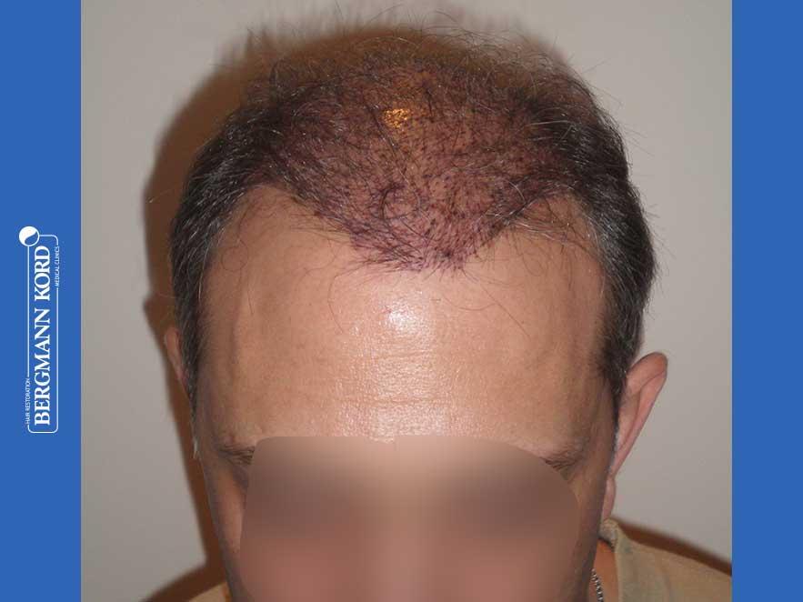 haartransplantation-bergmann-kord-ergebnisse-männer-58054PG-heute-front-001