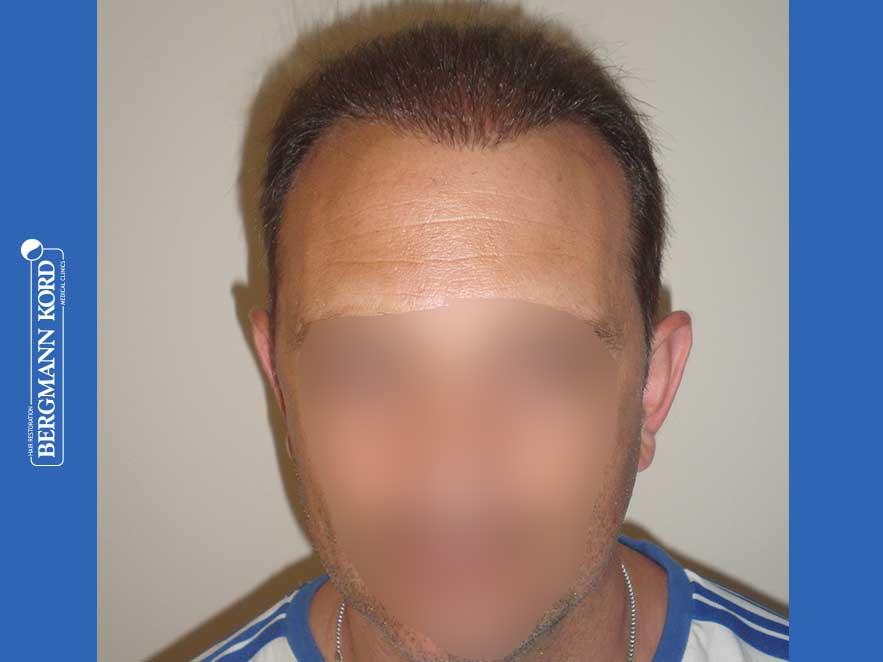 haartransplantation-bergmann-kord-ergebnisse-männer-58054PG-nach-front-001