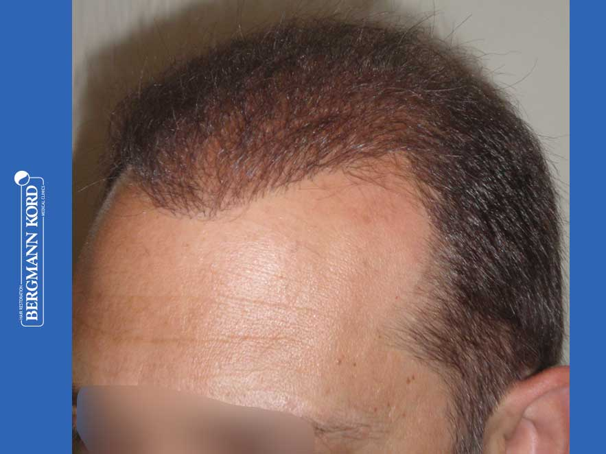 haartransplantation-bergmann-kord-ergebnisse-männer-58054PG-nach-links-001
