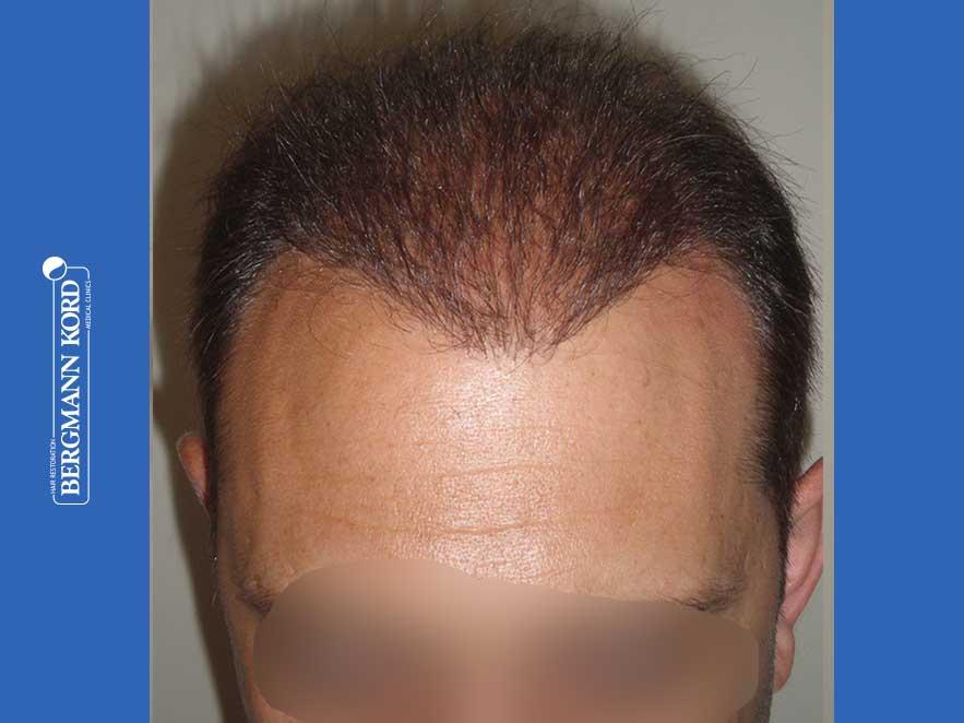 haartransplantation-bergmann-kord-ergebnisse-männer-58054PG-nach-ober-001
