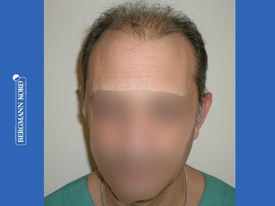 haartransplantation-bergmann-kord-ergebnisse-männer-58054PG-vor-front-001