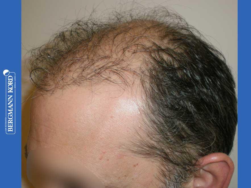 haartransplantation-bergmann-kord-ergebnisse-männer-58054PG-vor-links-001