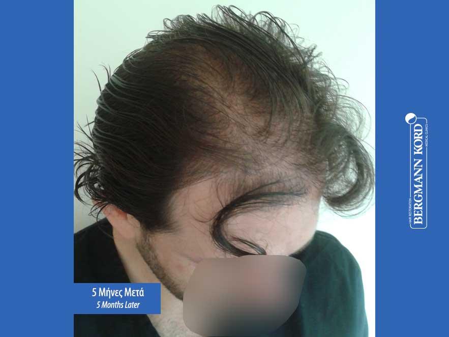 haartransplantation-bergmann-kord-ergebnisse-männer-59033PG-5monate-recht-001