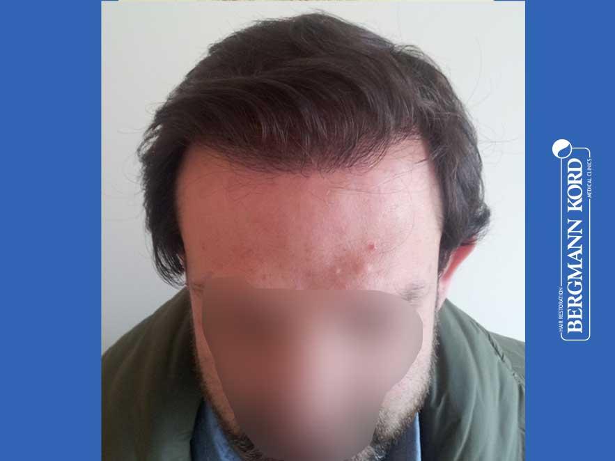 haartransplantation-bergmann-kord-ergebnisse-männer-59033PG-nach-front-001