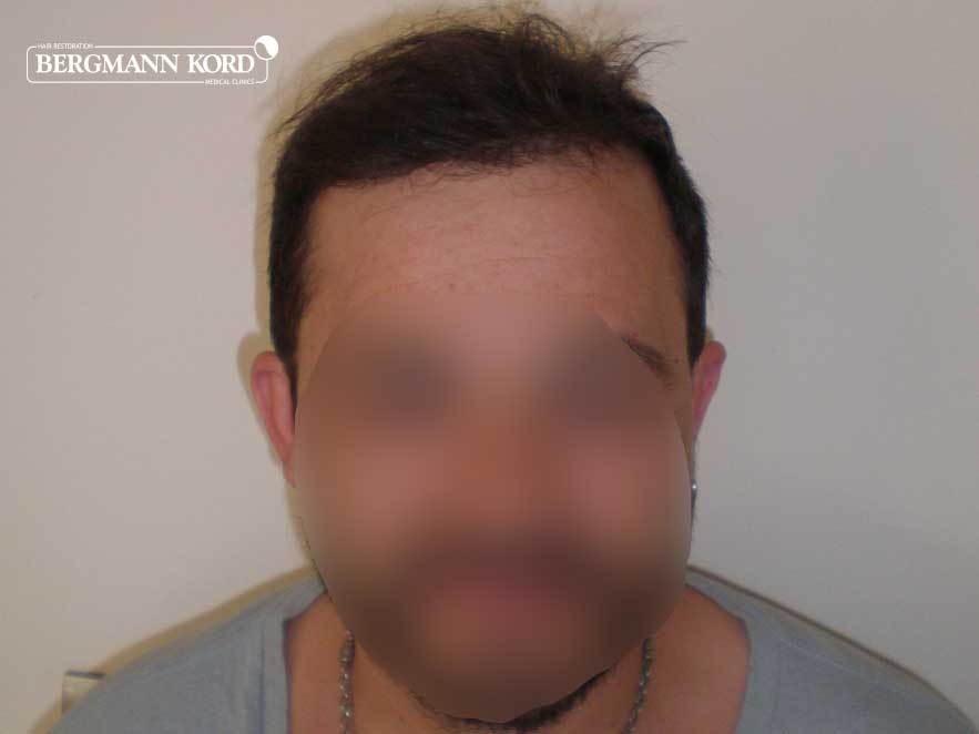 haartransplantation-bergmann-kord-ergebnisse-männer-62017PG-nach-front-001