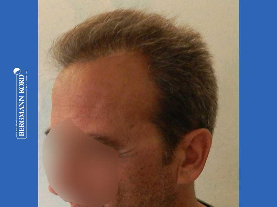 haartransplantation-bergmann-kord-ergebnisse-männer-62020PG-nach-links-001