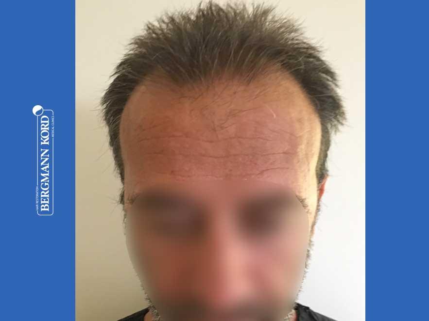 haartransplantation-bergmann-kord-ergebnisse-männer-62020PG-vor-front-001