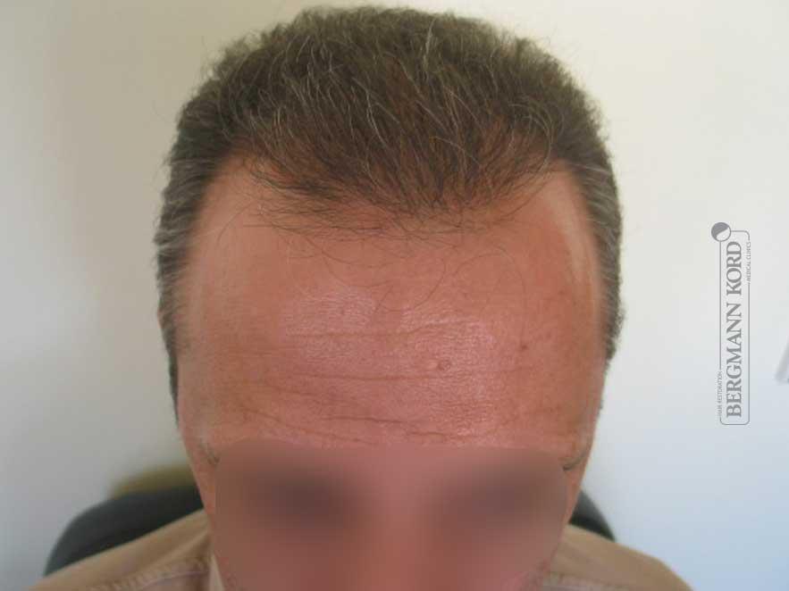 haartransplantation-bergmann-kord-ergebnisse-männer-62043PG-nach-front-001