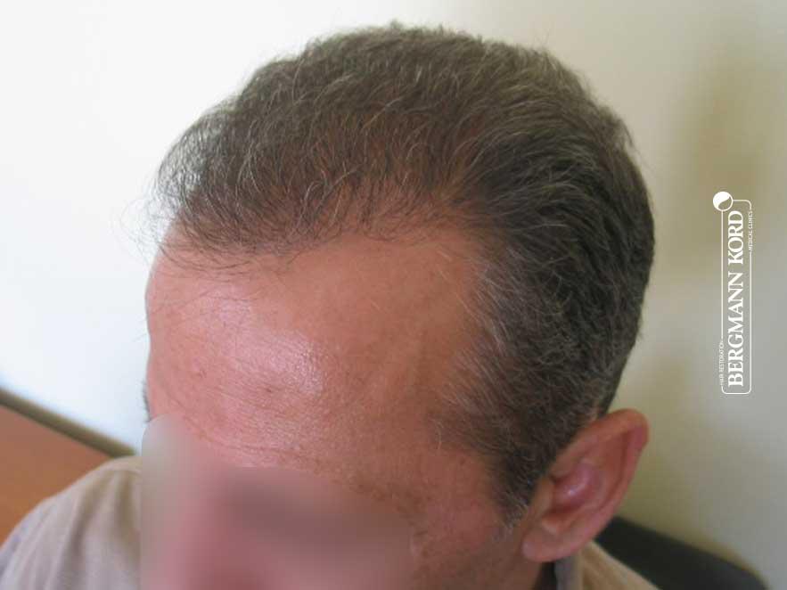 haartransplantation-bergmann-kord-ergebnisse-männer-62043PG-nach-links-001