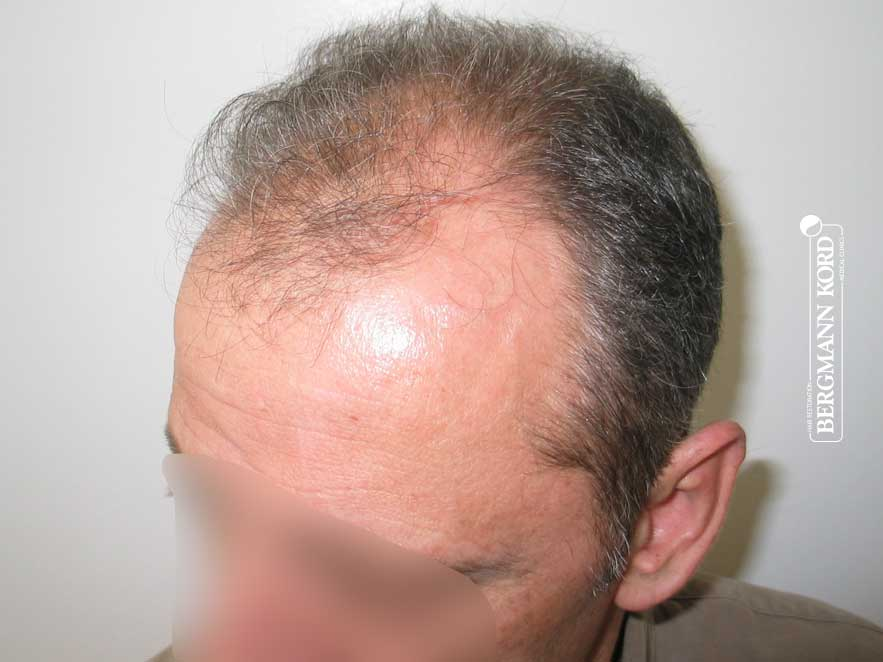 haartransplantation-bergmann-kord-ergebnisse-männer-62043PG-vor-links-001