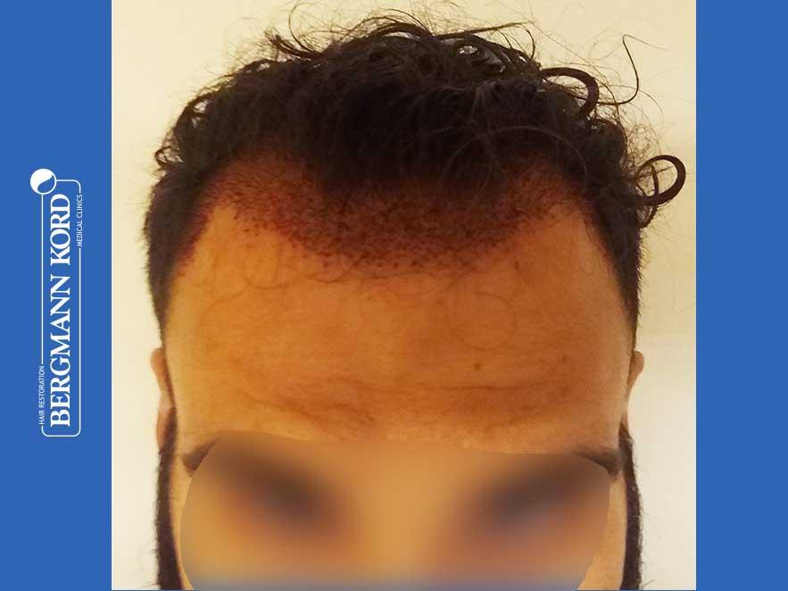 haartransplantation-bergmann-kord-ergebnisse-männer-64051PG-heute-front-001