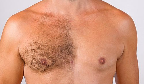 haartransplantation-bergmann-kord-haar-kliniken-koerperhaartransplantation-textfoto-001