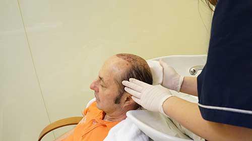 Μεταμόσχευση Μαλλιών FUT - Herbert R. - 24 Ιανουαρίου 2017