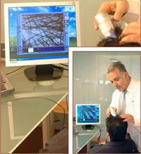 Hair loss diagnosis. Free online diagnosis in Bergmann Kord Hair Clinic.