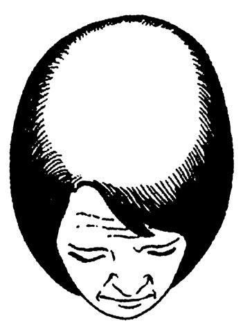 Классификация выпадения волос по Людвигу. Женское облысение и стадии. Этап 3.