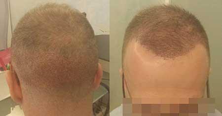 Αποτέλεσμα Μεταμόσχευσης Μαλλιών FUE